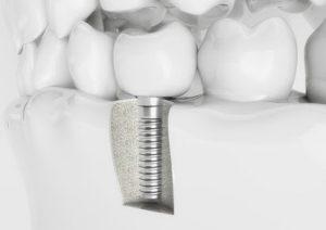 vue en coupe d'un pivot dentaire